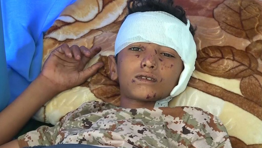 Yemeni Journalist: I Was Afraid US-Saudi Coalition Would Bomb My Wedding Party too